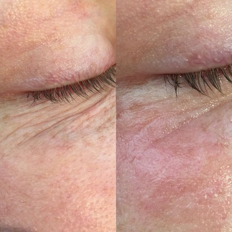 Marie Reynolds Eye Lines Treatment